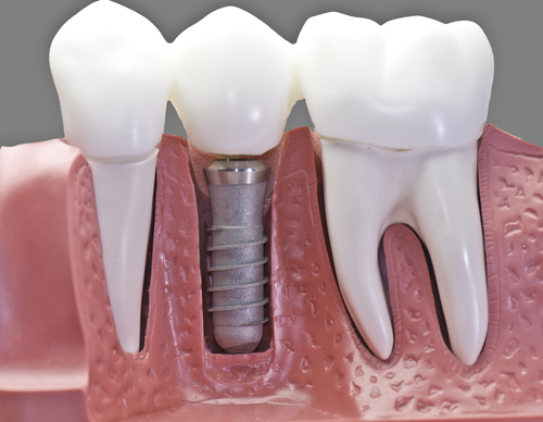 Dental Implant Options After Experiencing Dentures