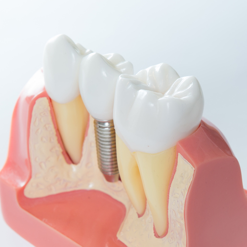 Tooth Replacement for teeth damaged by addiction   Recovery Dentistry of Boynton Beach