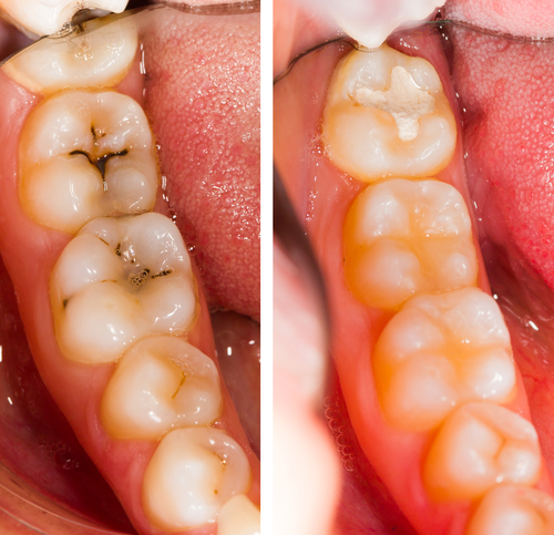 Full Mouth Restoration at Recovery Dentistry of Palm Beach